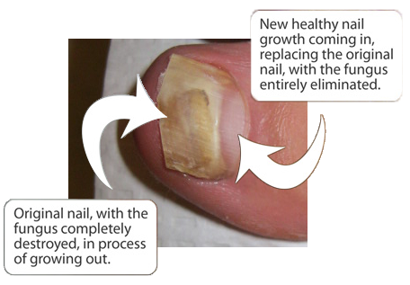 Chicago Toenail Fungus Treatment | Chicago Toenail Fungus Removal ...
